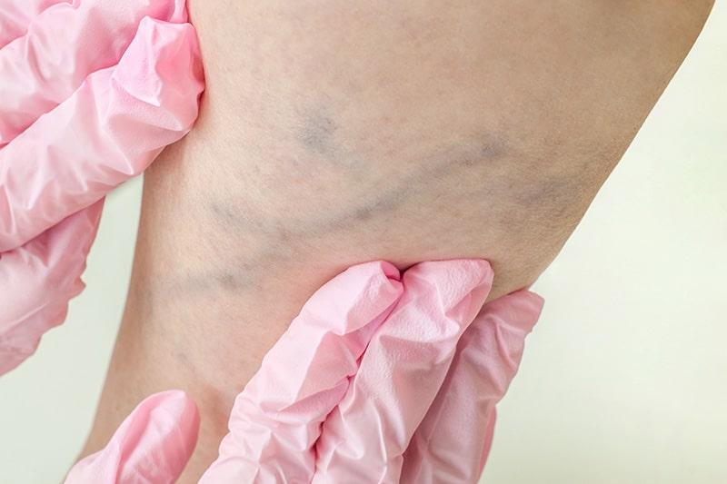 Lesioni vascolari corpo e gambe