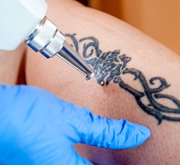 Rimozione tatuaggi